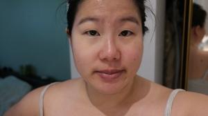 Remedy Concealer Pen on left side of eyelid and under eye